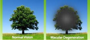 AMD Vision Impairment