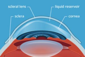 Scleral Contact Lens Fittings